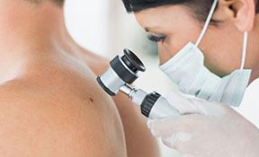 dermatoskopia